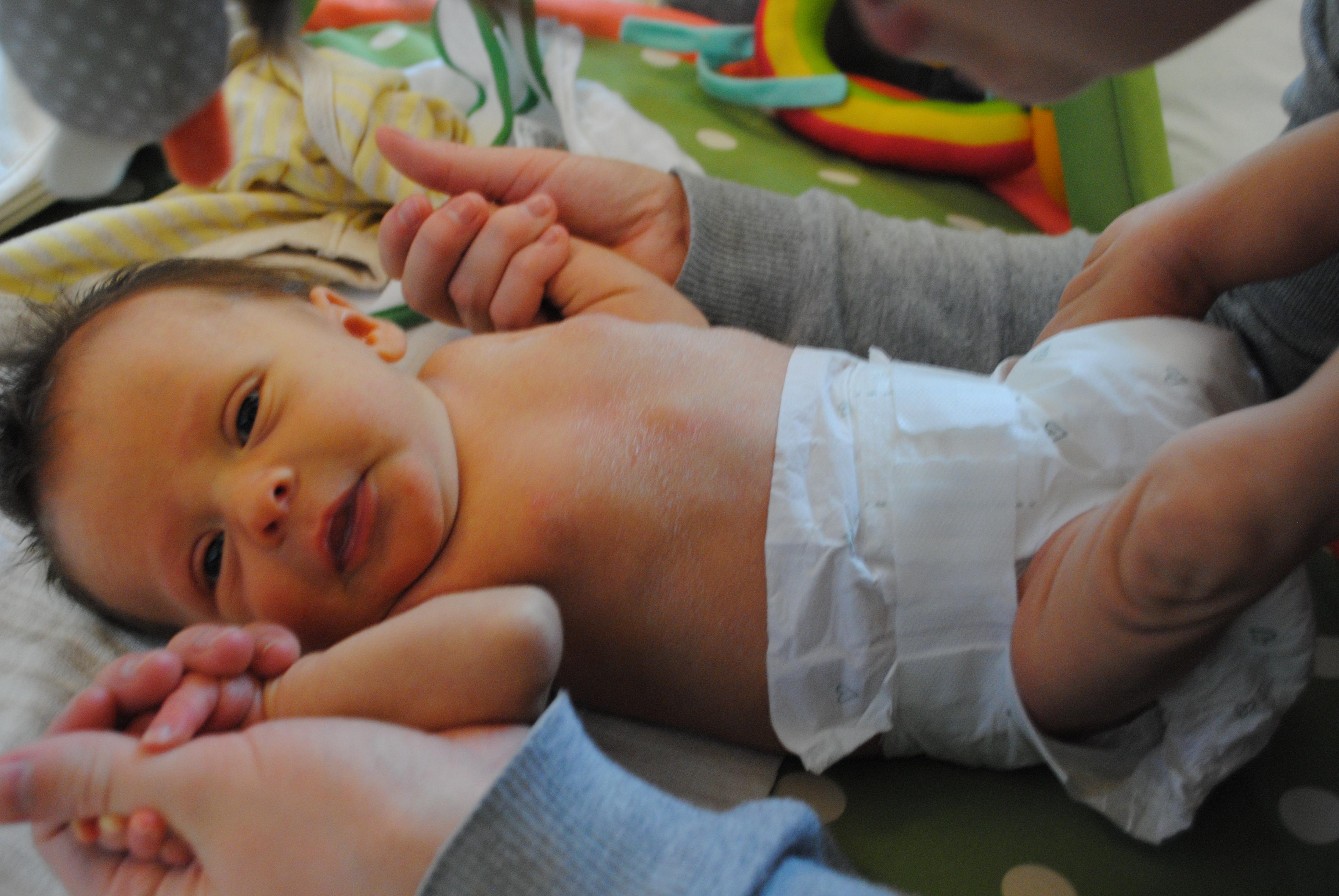 Newborn eczema baby skin and allergies